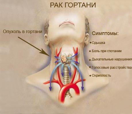 Симптомы Рака гортани у детей