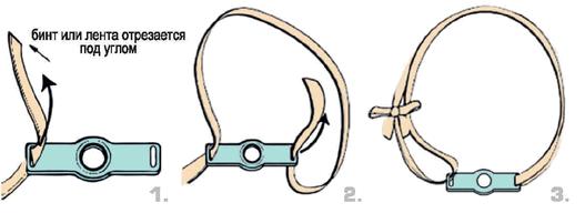 Фиксаторы трахеостомической трубки 2 фото