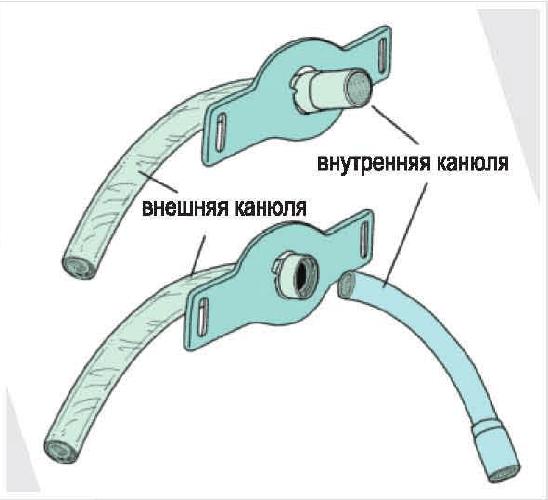 Трахеостомические трубки фото