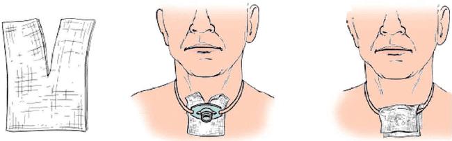 Компрессы для трахеостомы фото