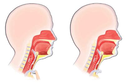 Трахеопищеводное шунтирование с применением голосового протеза фото